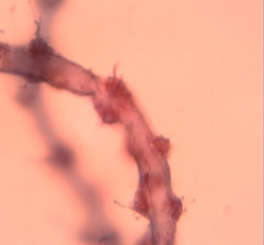 Nematocysts & triggers